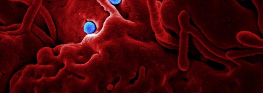 La física cuántica colabora en la lucha contra las infecciones y el cáncer • Tendencias21